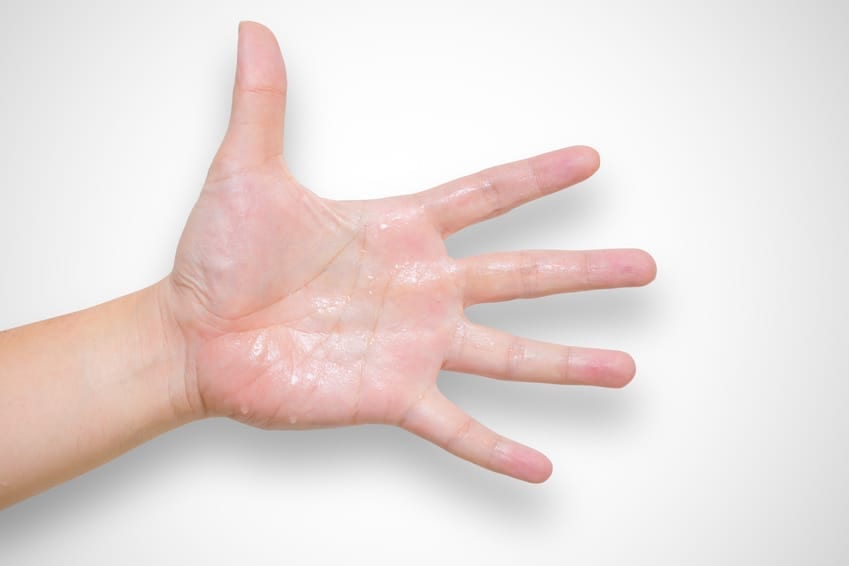 hyperhidrosis treatment